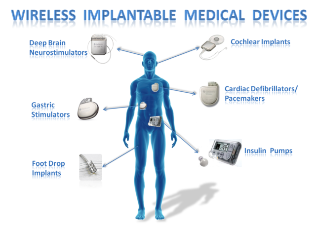 Wireless Implantable Medical Devices